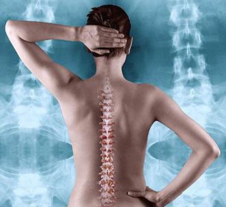 Эффективность мовалиса при лечении острых болей в нижней части спины
