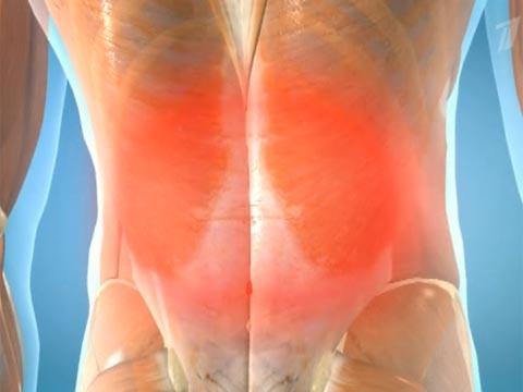 Лечение острой боли в поясничной области спины