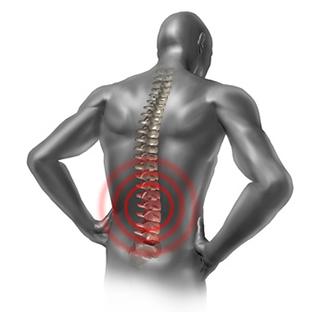 Скелетно-мышечные боли в спине